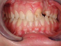 Labiopalatoschisi o labbro leporino  in giovane adolescente